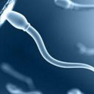 Аналіз сперми, спермограма
