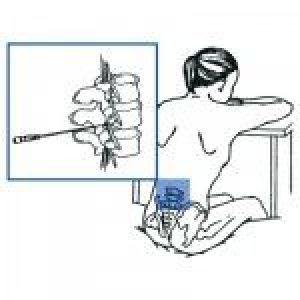 Анестезія при пологах