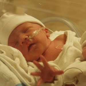 Асфіксія новонароджених