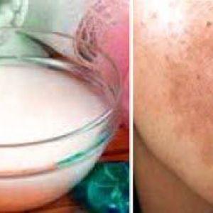 Домашні маски для відбілювання комбінованої шкіри
