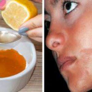 Домашні маски для відбілювання нормальної шкіри