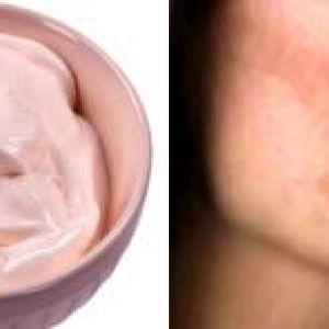 Домашні маски для відбілювання пігментації шкіри, що в`яне