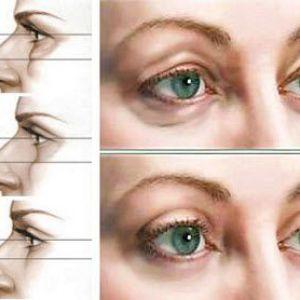 Гіалуронова кислота. Засоби від мішків під очима
