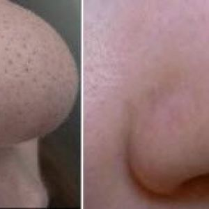 Як швидко прибрати чорні крапки на обличчі, на носі домашніми способами
