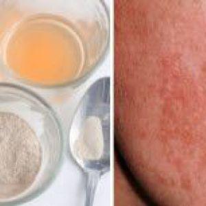 Як позбутися від пігментних плям, відбілити жирну шкіру обличчя