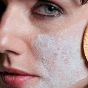 Як позбутися від шрамів, рубців після прищів на обличчі