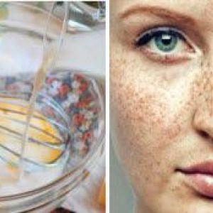 Як відбілити особа і освітлити пігментні плями на сухій шкірі