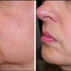 Як підтягнути шкіру обличчя?