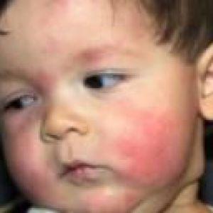 Лікування харчової алергії у дітей