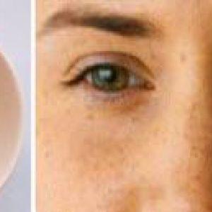 Маски від зморшок навколо очей. У домашніх умовах за рецептами
