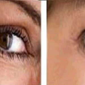Процедура фотоомолодження. Фото особи до і після сеансів