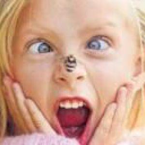 Укуси комах у дітей