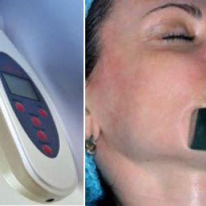 Ультразвуковий пілінг шкіри. Фото особи до і після чистки