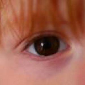 Вітаміни для очей для дітей